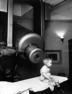 External_beam_radiotherapy_retinoblastoma_nci-vol-1924-300